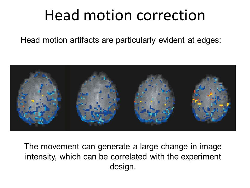 Head motion correction