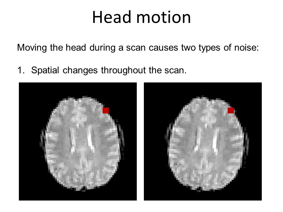 Head motion Moving the head during a scan causes two types of noise:
