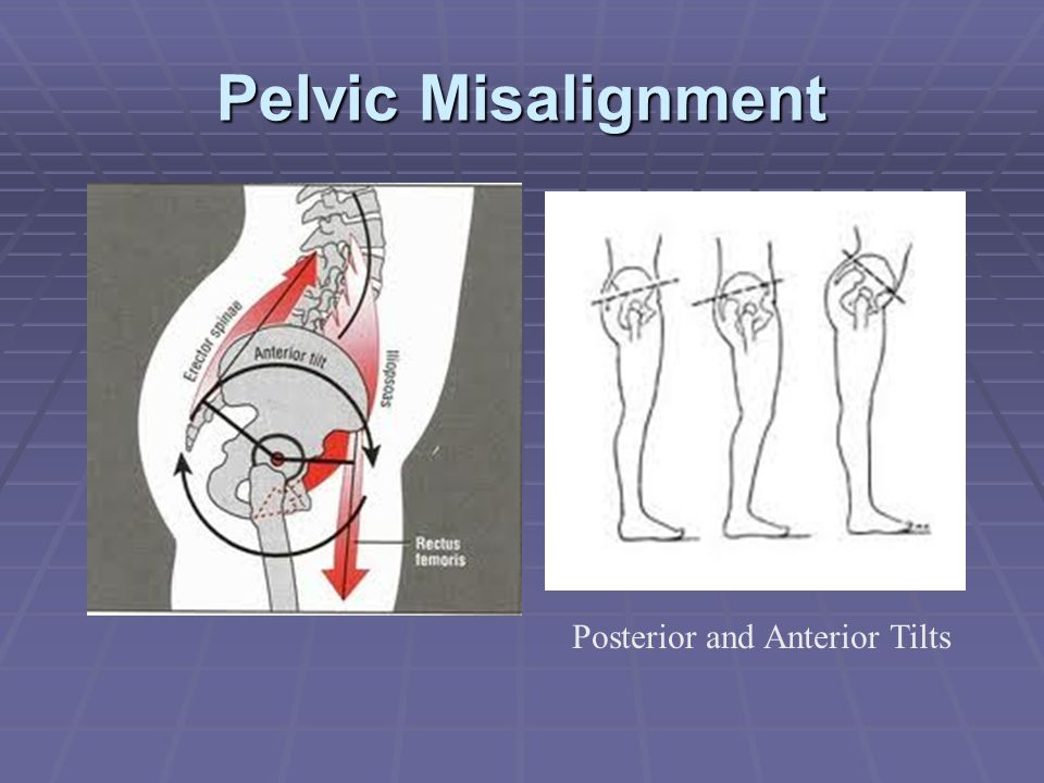 Pelvic Misalignment Posterior and Anterior Tilts