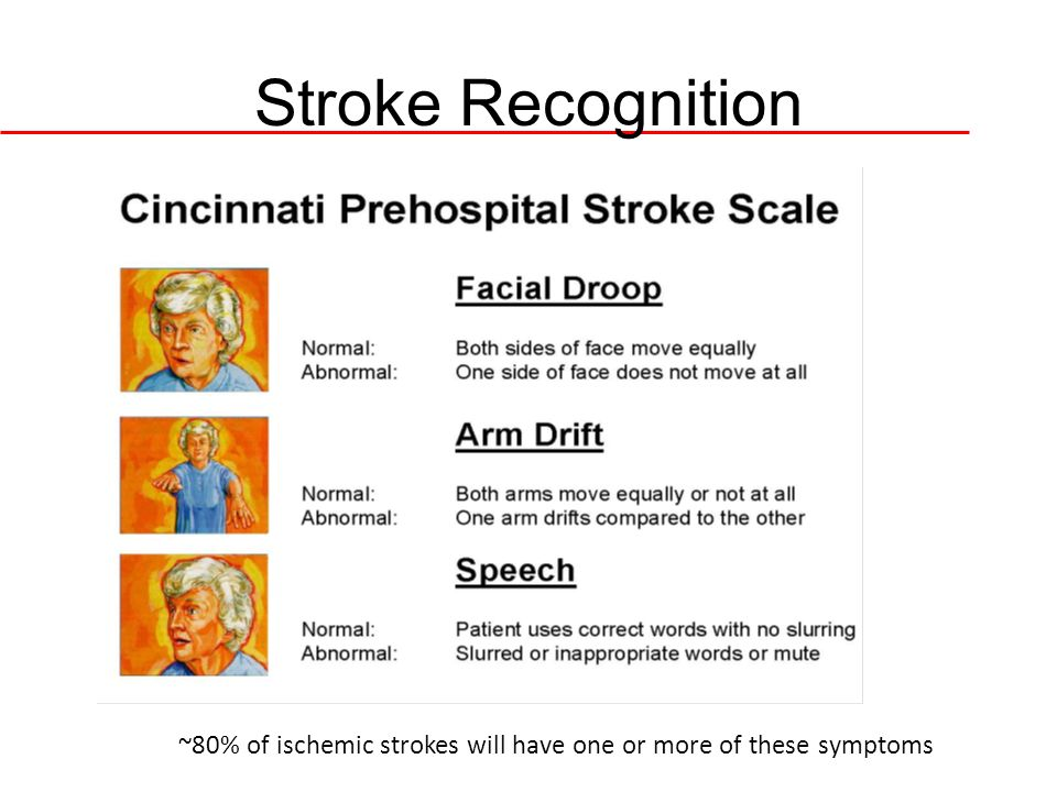 Stroke Recognition