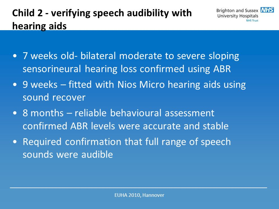 Child 2 - verifying speech audibility with hearing aids