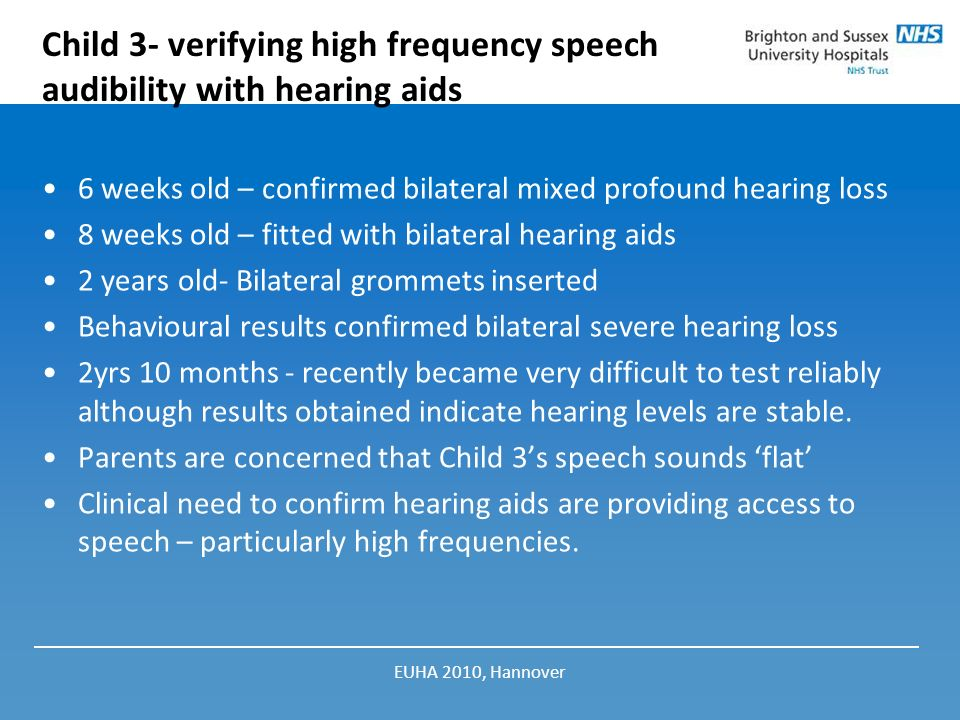 Child 3- verifying high frequency speech audibility with hearing aids