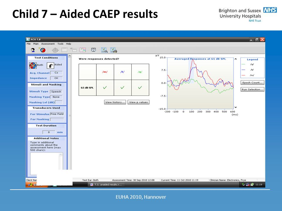 Child 7 – Aided CAEP results