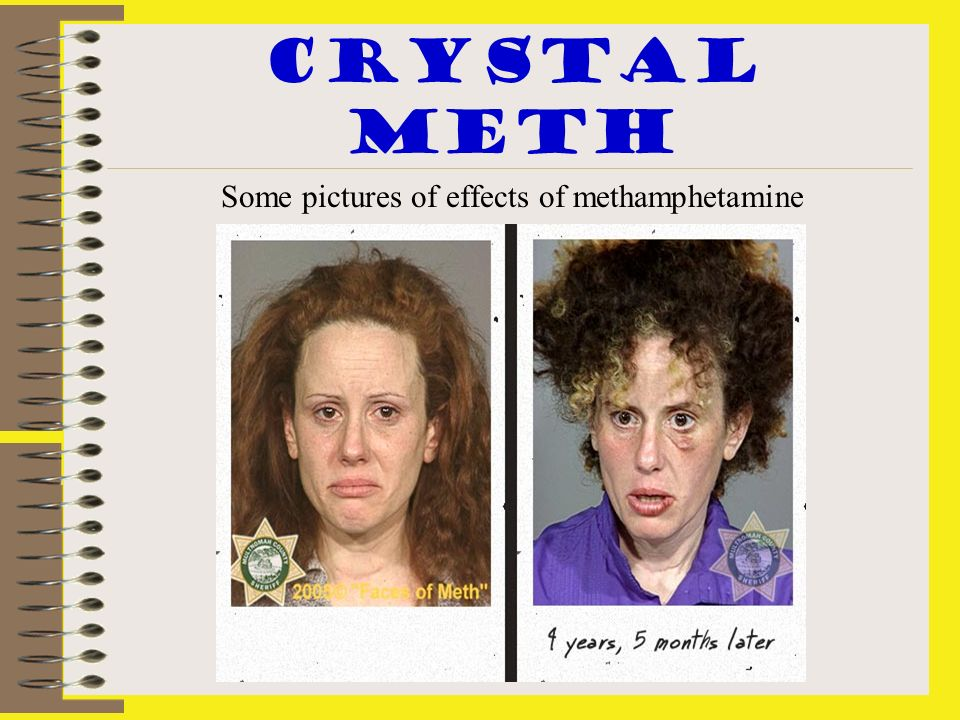 Some pictures of effects of methamphetamine