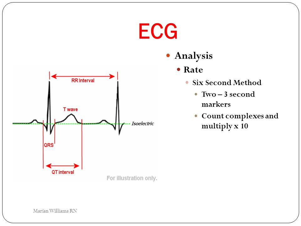 ECG Analysis Rate Six Second Method Two – 3 second markers