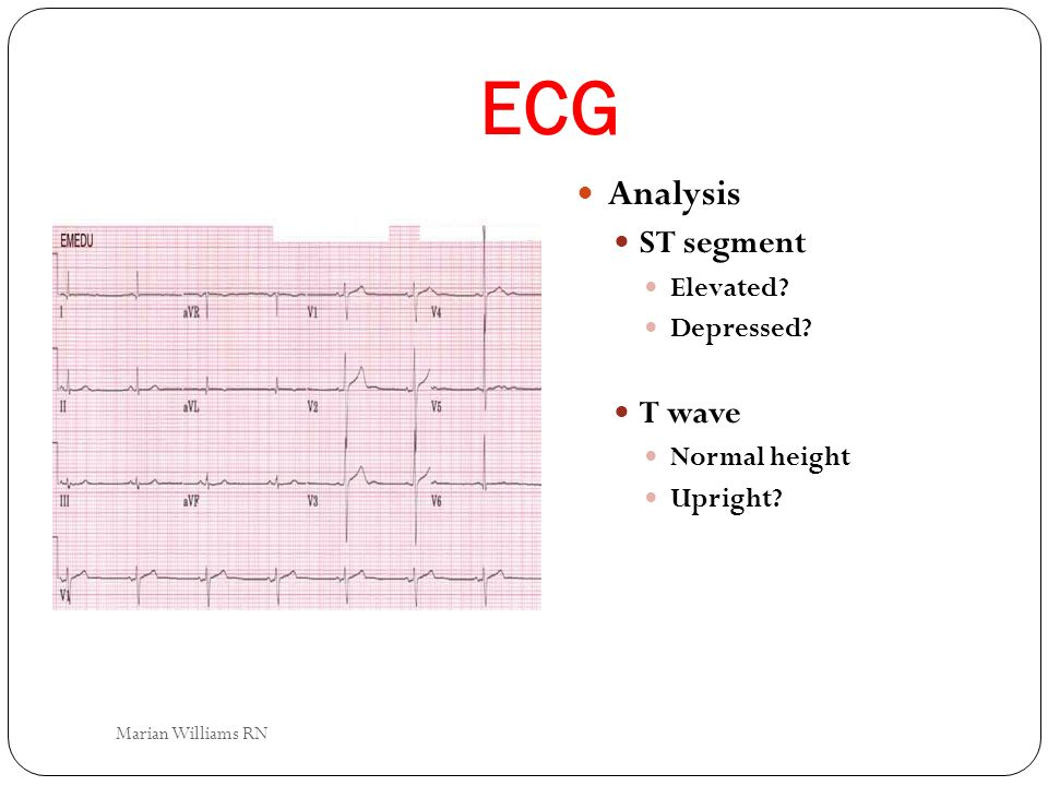 ECG Analysis ST segment T wave Elevated Depressed Normal height