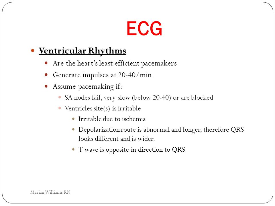 ECG Ventricular Rhythms Are the heart's least efficient pacemakers