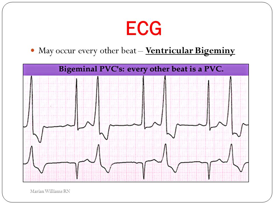 ECG May occur every other beat – Ventricular Bigeminy