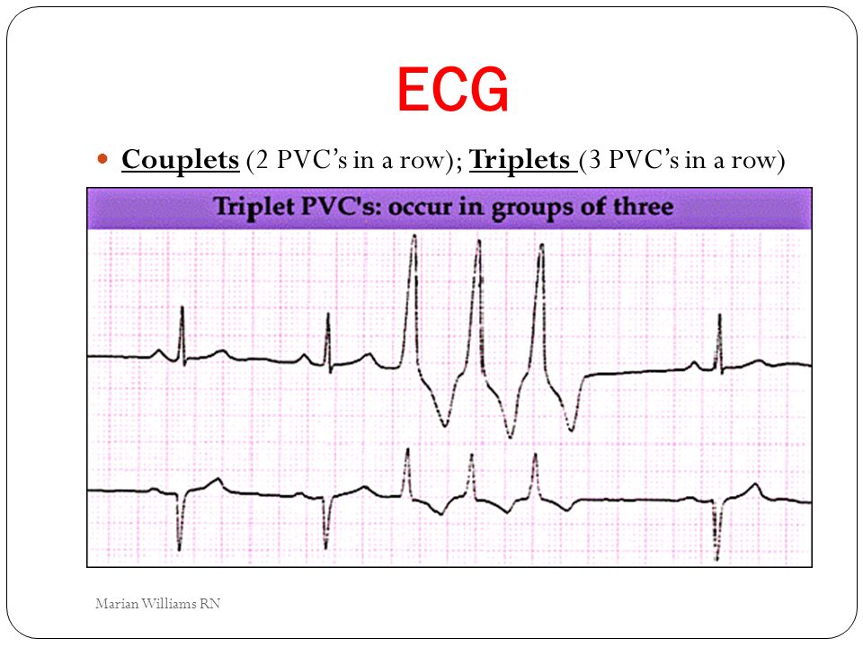 ECG Couplets (2 PVC's in a row); Triplets (3 PVC's in a row)