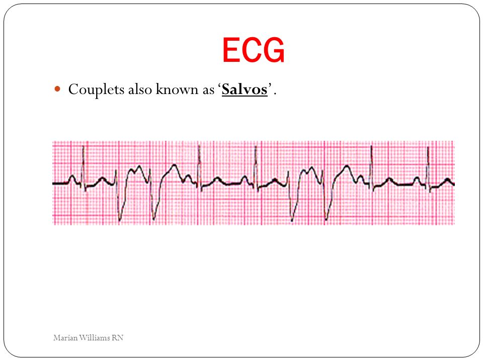 ECG Couplets also known as 'Salvos'. Marian Williams RN