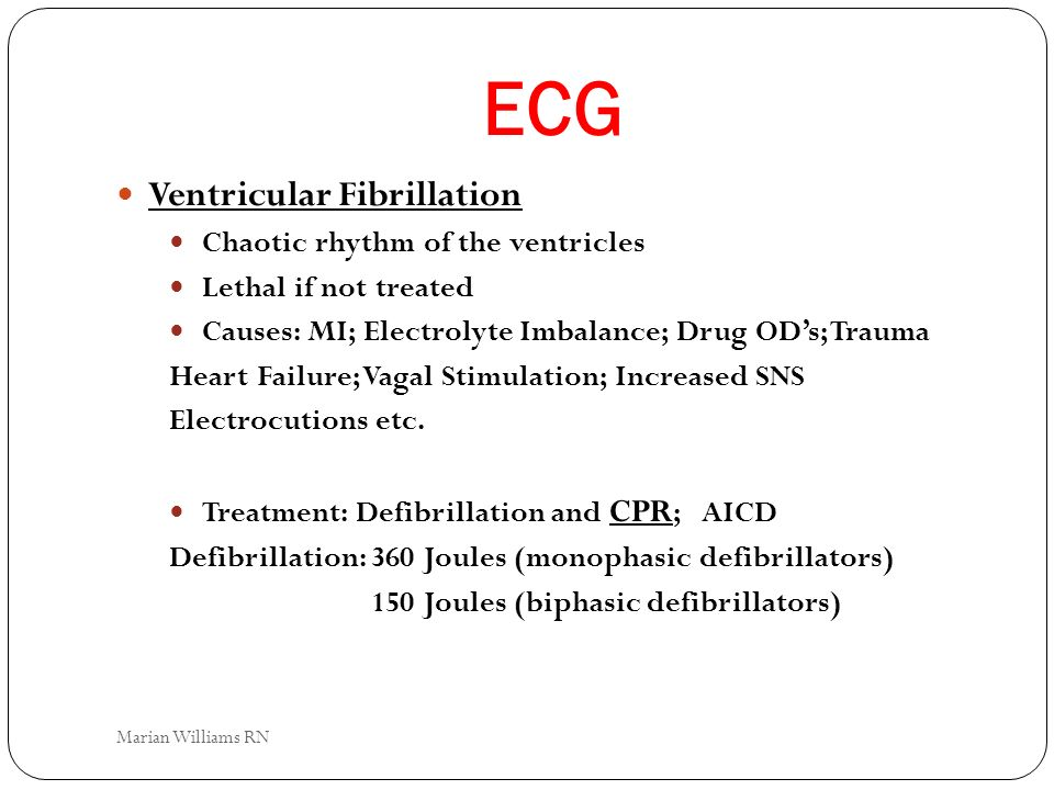 ECG Ventricular Fibrillation Chaotic rhythm of the ventricles