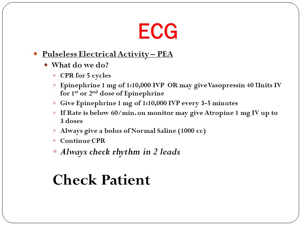 ECG Check Patient Always check rhythm in 2 leads