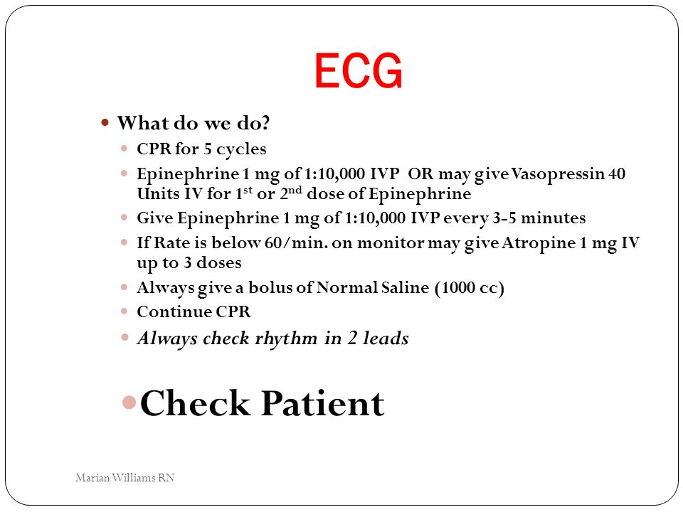 ECG Check Patient What do we do Always check rhythm in 2 leads
