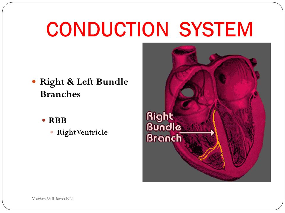 CONDUCTION SYSTEM Right & Left Bundle Branches RBB Right Ventricle