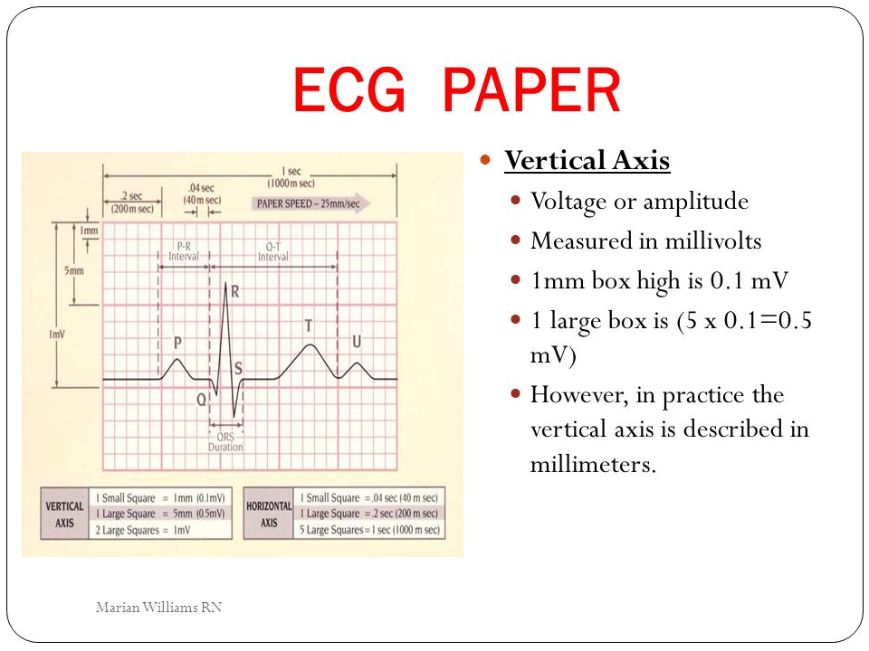 ECG PAPER Vertical Axis Voltage or amplitude Measured in millivolts