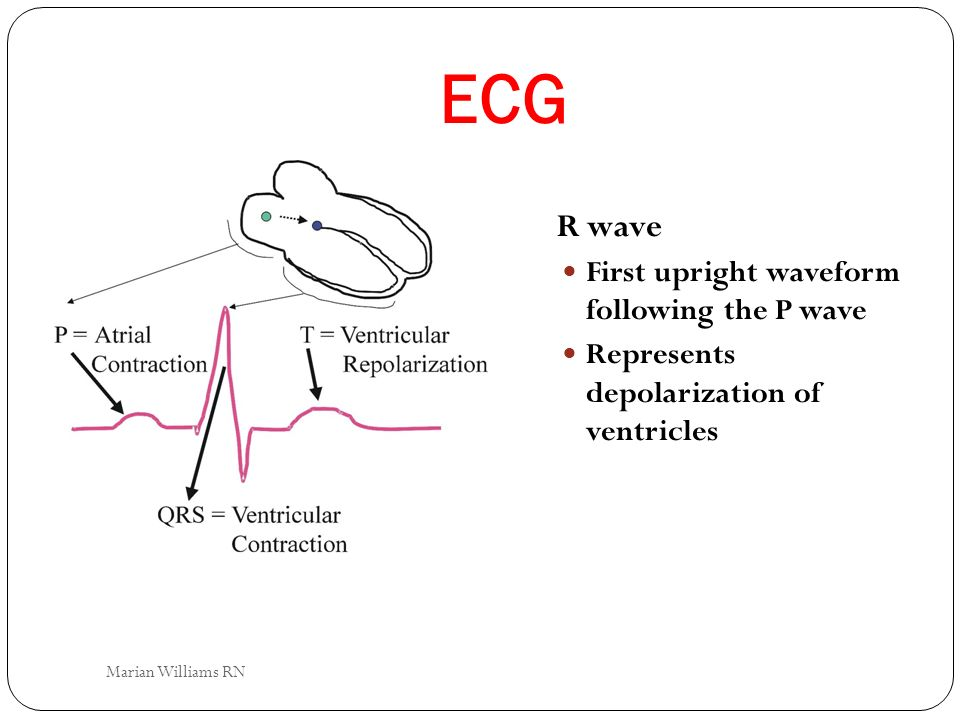 ECG R wave First upright waveform following the P wave