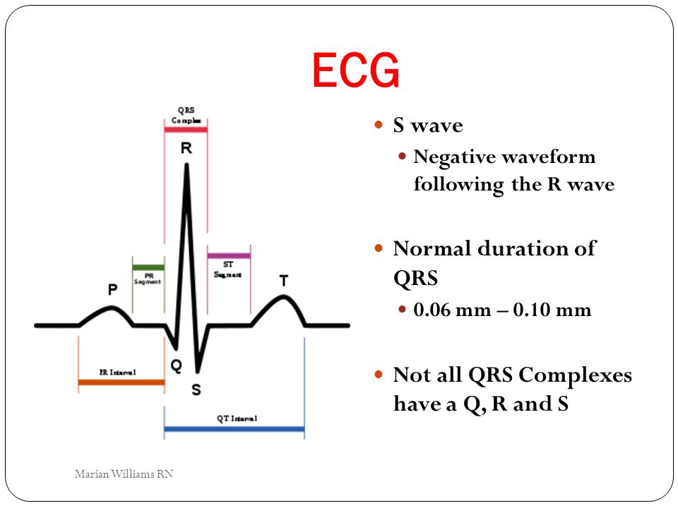 ECG S wave Normal duration of QRS