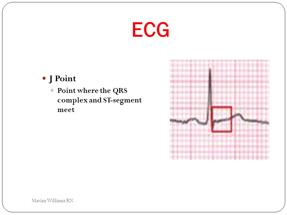 ECG J Point Point where the QRS complex and ST-segment meet