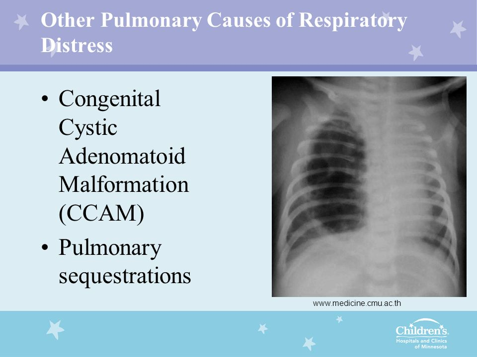 Other Pulmonary Causes of Respiratory Distress