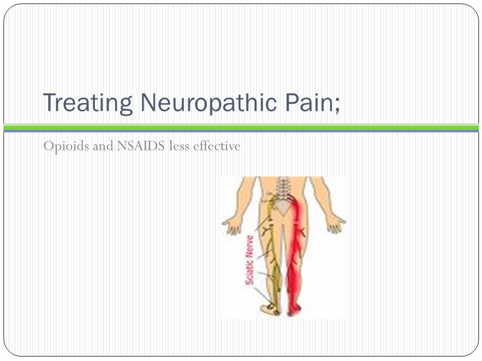 Treating Neuropathic Pain;