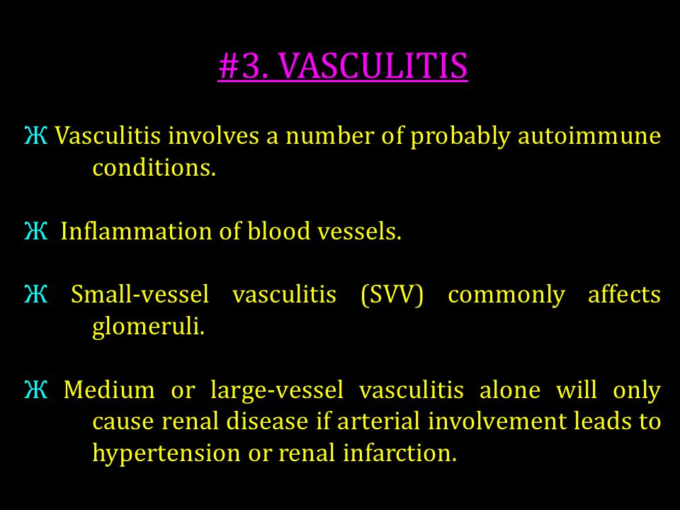 #3. VASCULITIS Ж Vasculitis involves a number of probably autoimmune conditions. Ж Inflammation of blood vessels.