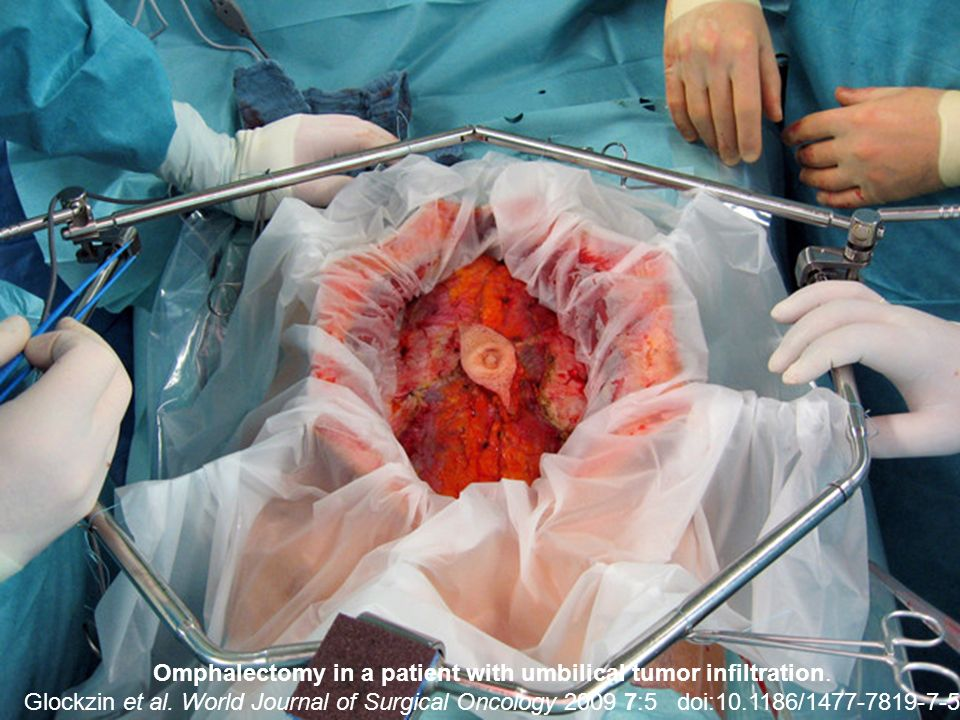 Omphalectomy in a patient with umbilical tumor infiltration.