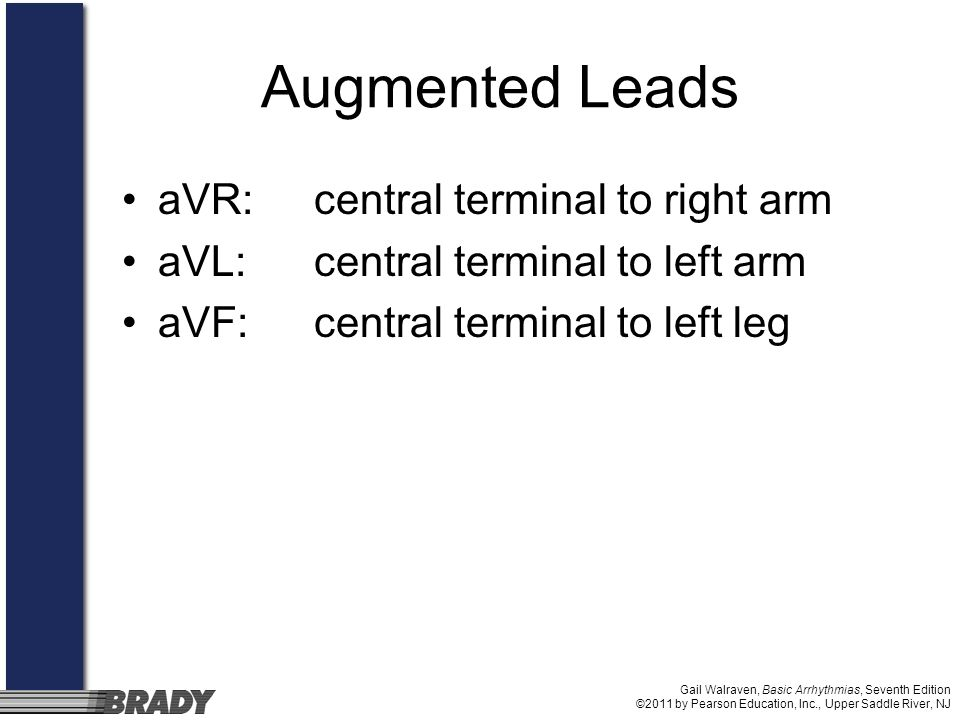 Augmented Leads aVR: central terminal to right arm