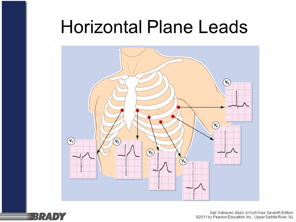 Horizontal Plane Leads