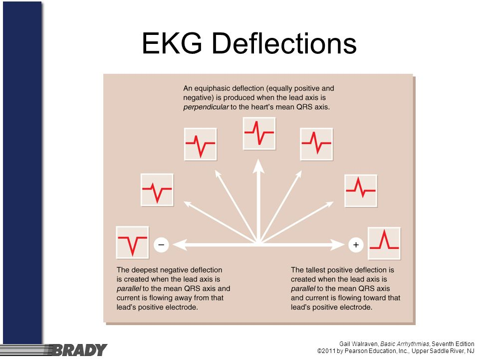 EKG Deflections Gail Walraven, Basic Arrhythmias, Seventh Edition ©2011 by Pearson Education, Inc., Upper Saddle River, NJ.