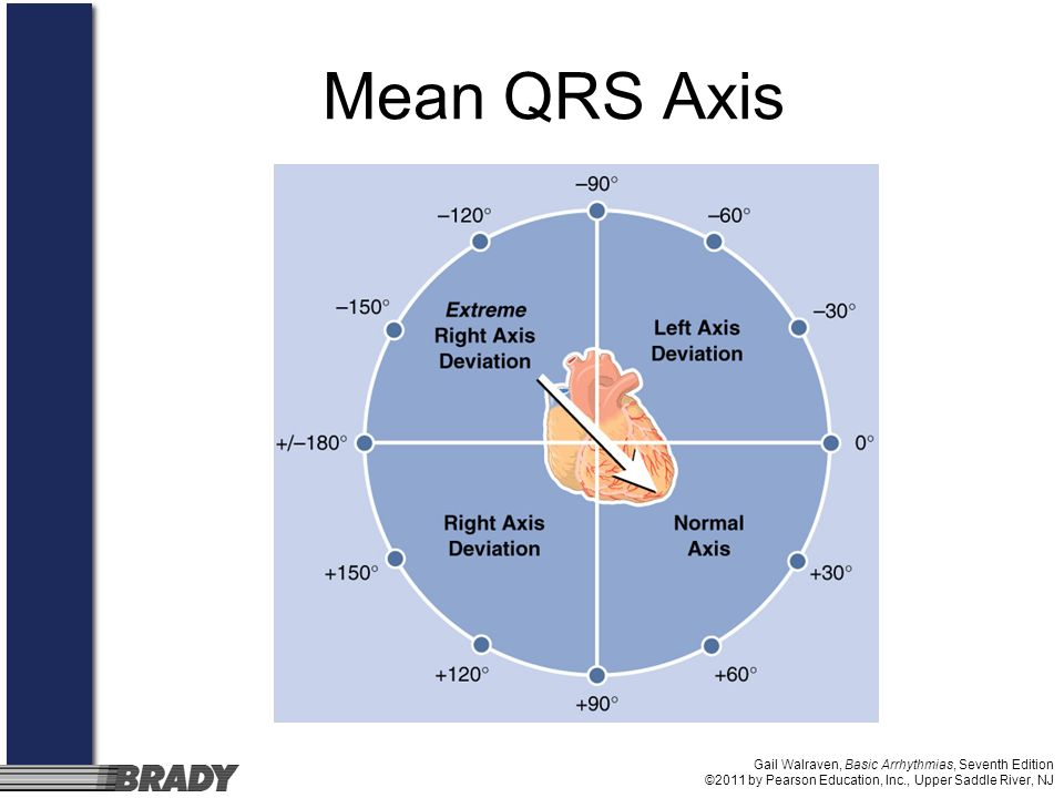 Mean QRS Axis Gail Walraven, Basic Arrhythmias, Seventh Edition ©2011 by Pearson Education, Inc., Upper Saddle River, NJ.