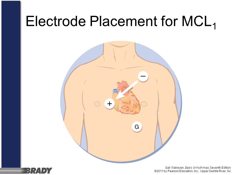 Electrode Placement for MCL1