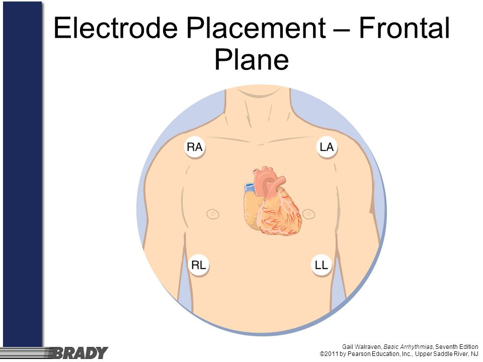 Electrode Placement – Frontal Plane