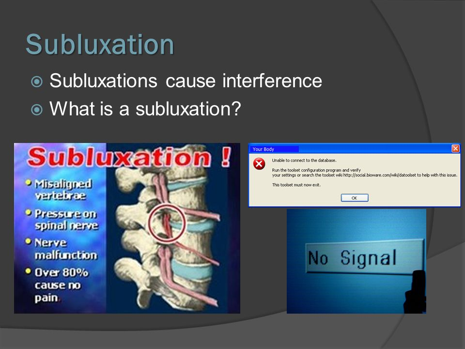 Subluxation Subluxations cause interference What is a subluxation