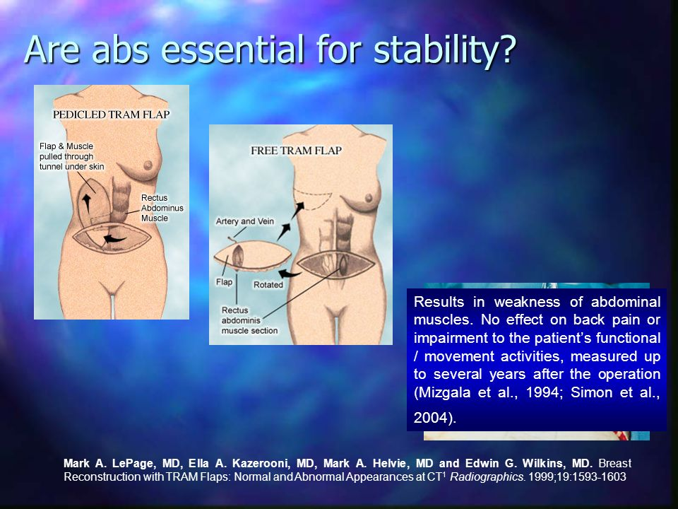 Are abs essential for stability