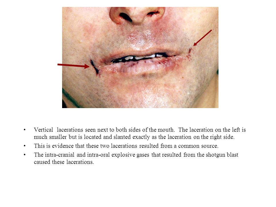 Vertical lacerations seen next to both sides of the mouth