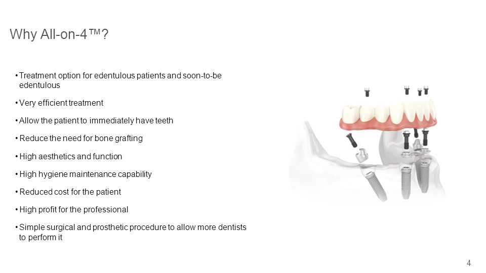 Why All-on-4™ Treatment option for edentulous patients and soon-to-be edentulous. Very efficient treatment.
