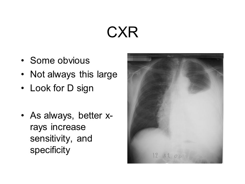 CXR Some obvious Not always this large Look for D sign