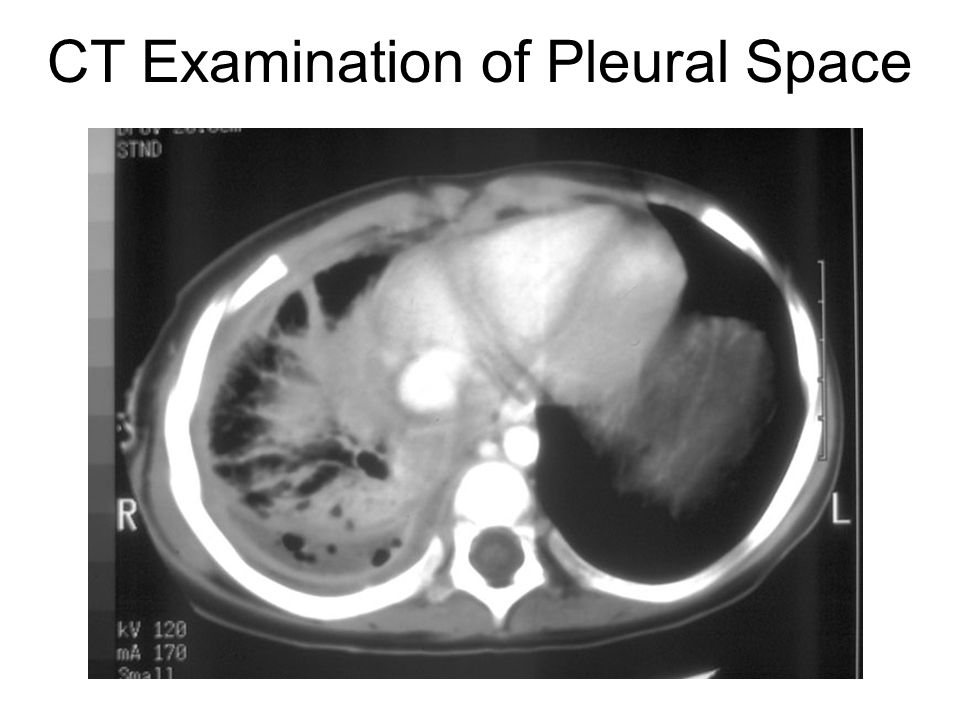 CT Examination of Pleural Space