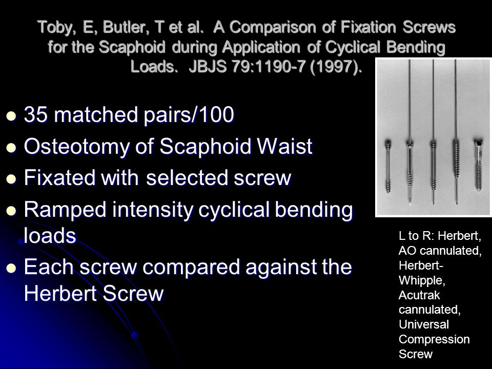 Osteotomy of Scaphoid Waist Fixated with selected screw