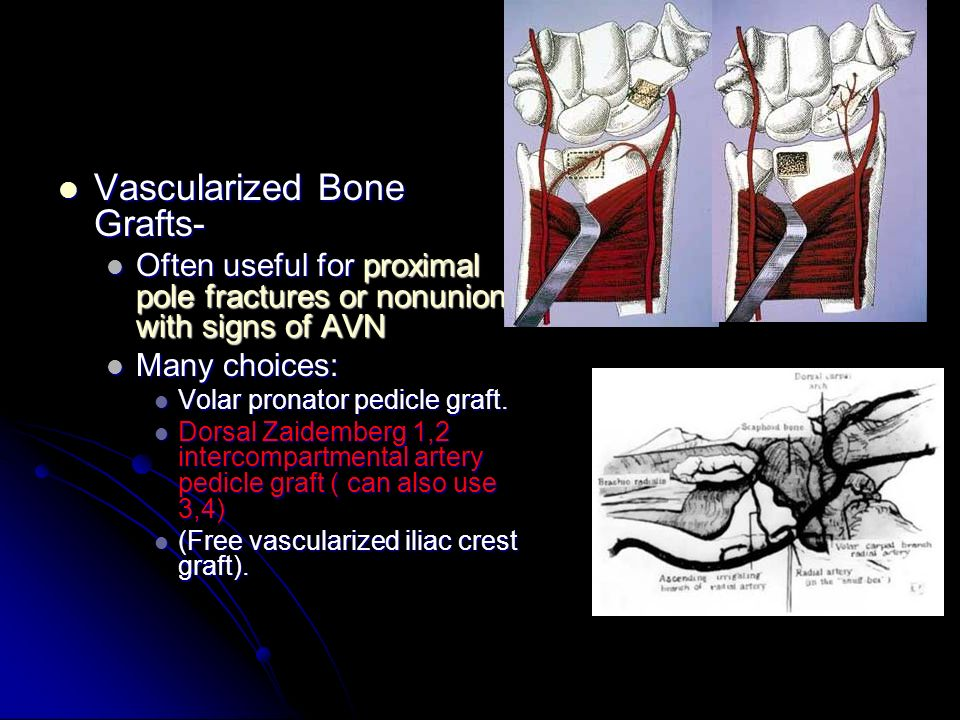 Vascularized Bone Grafts-