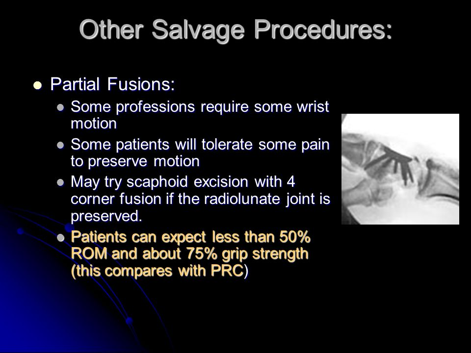 Other Salvage Procedures: