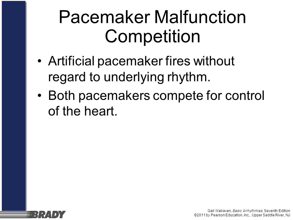 Pacemaker Malfunction Competition