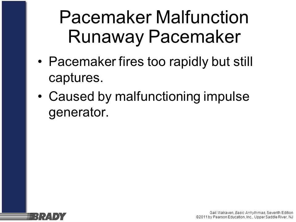 Pacemaker Malfunction Runaway Pacemaker
