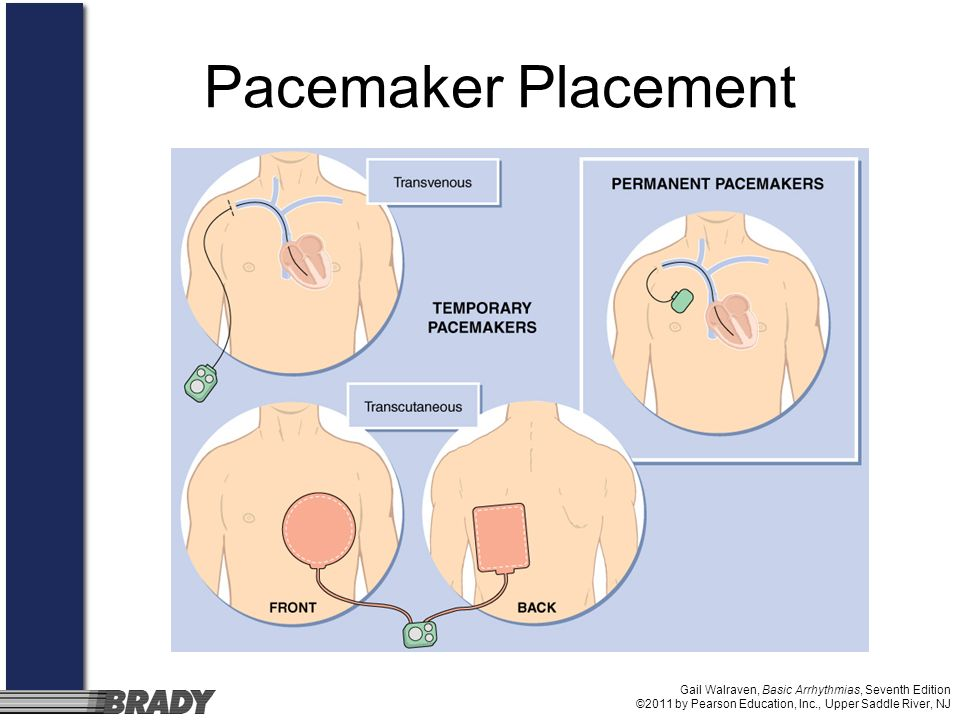 Pacemaker Placement Gail Walraven, Basic Arrhythmias, Seventh Edition ©2011 by Pearson Education, Inc., Upper Saddle River, NJ.