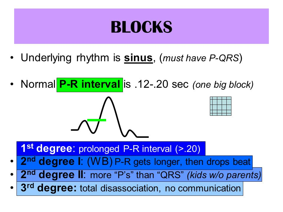 BLOCKS Underlying rhythm is sinus, (must have P-QRS)