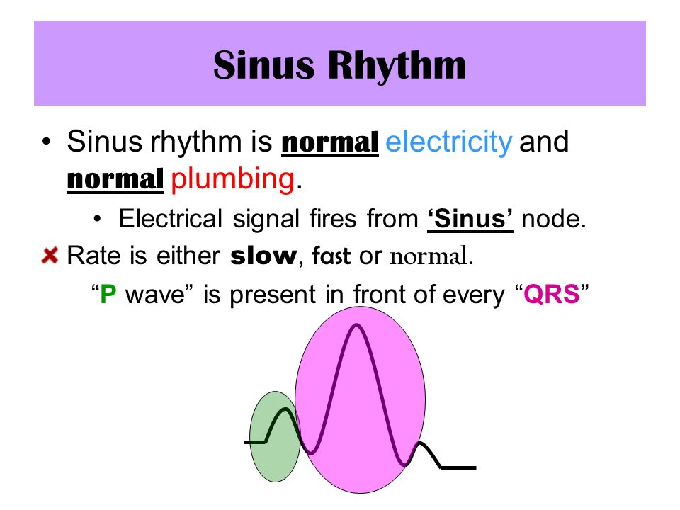 Sinus Rhythm Sinus rhythm is normal electricity and normal plumbing.