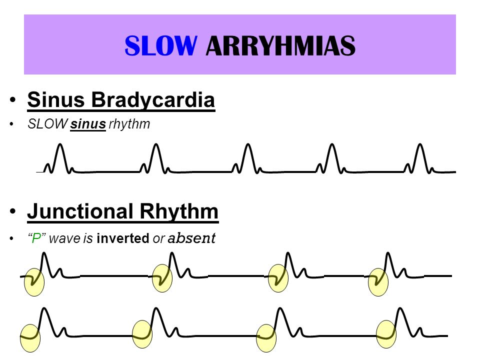 SLOW ARRYHMIAS Sinus Bradycardia Junctional Rhythm SLOW sinus rhythm