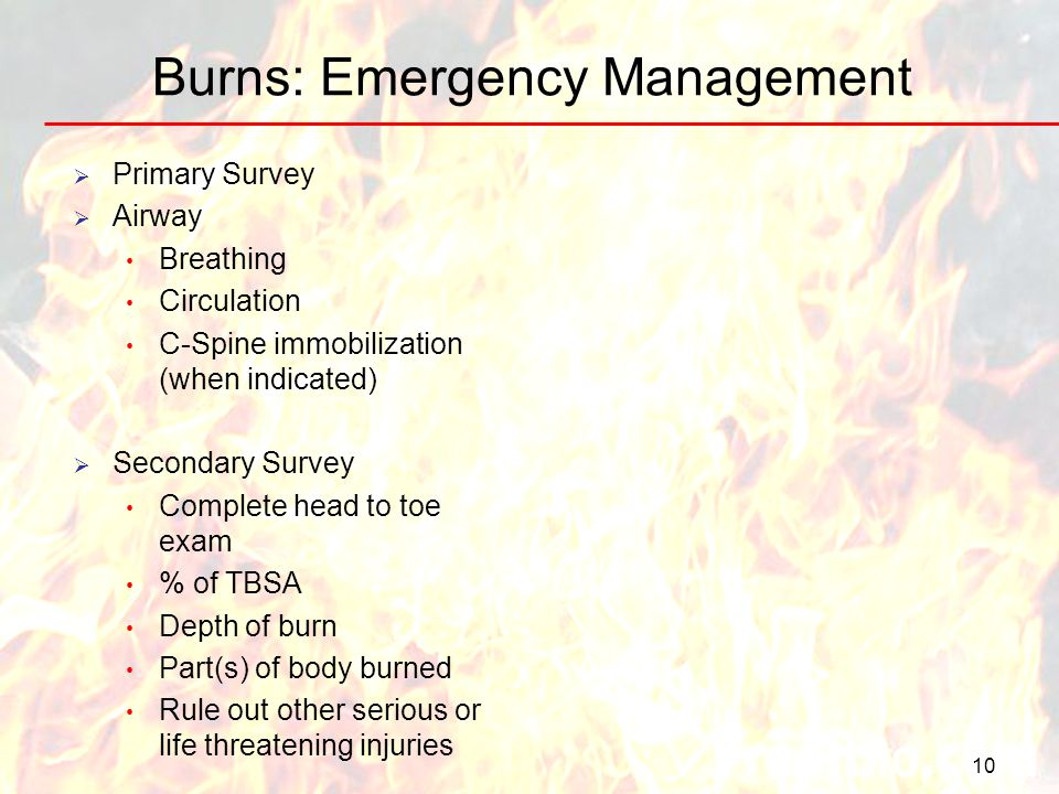 Burns: Emergency Management