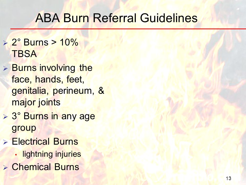 ABA Burn Referral Guidelines