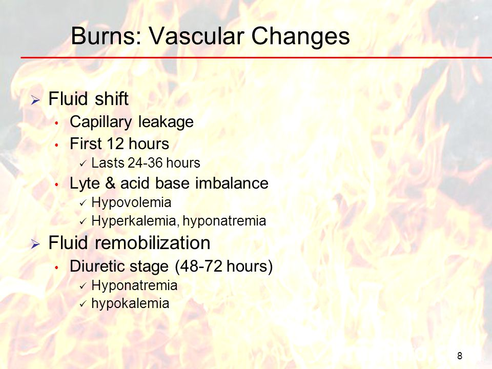 Burns: Vascular Changes